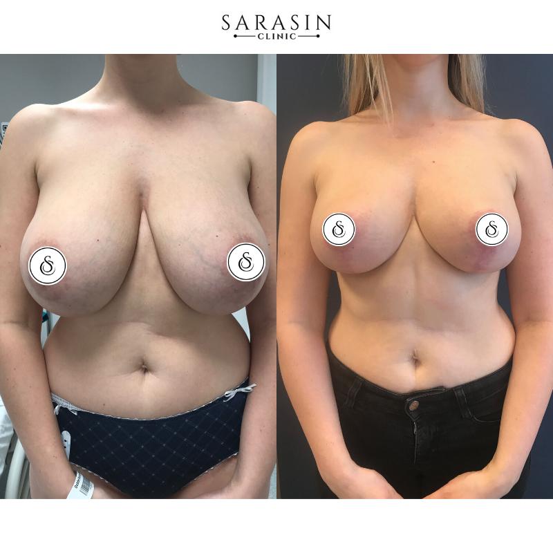 Sarasin Clinic Borstreductie vrouw voor en na foto