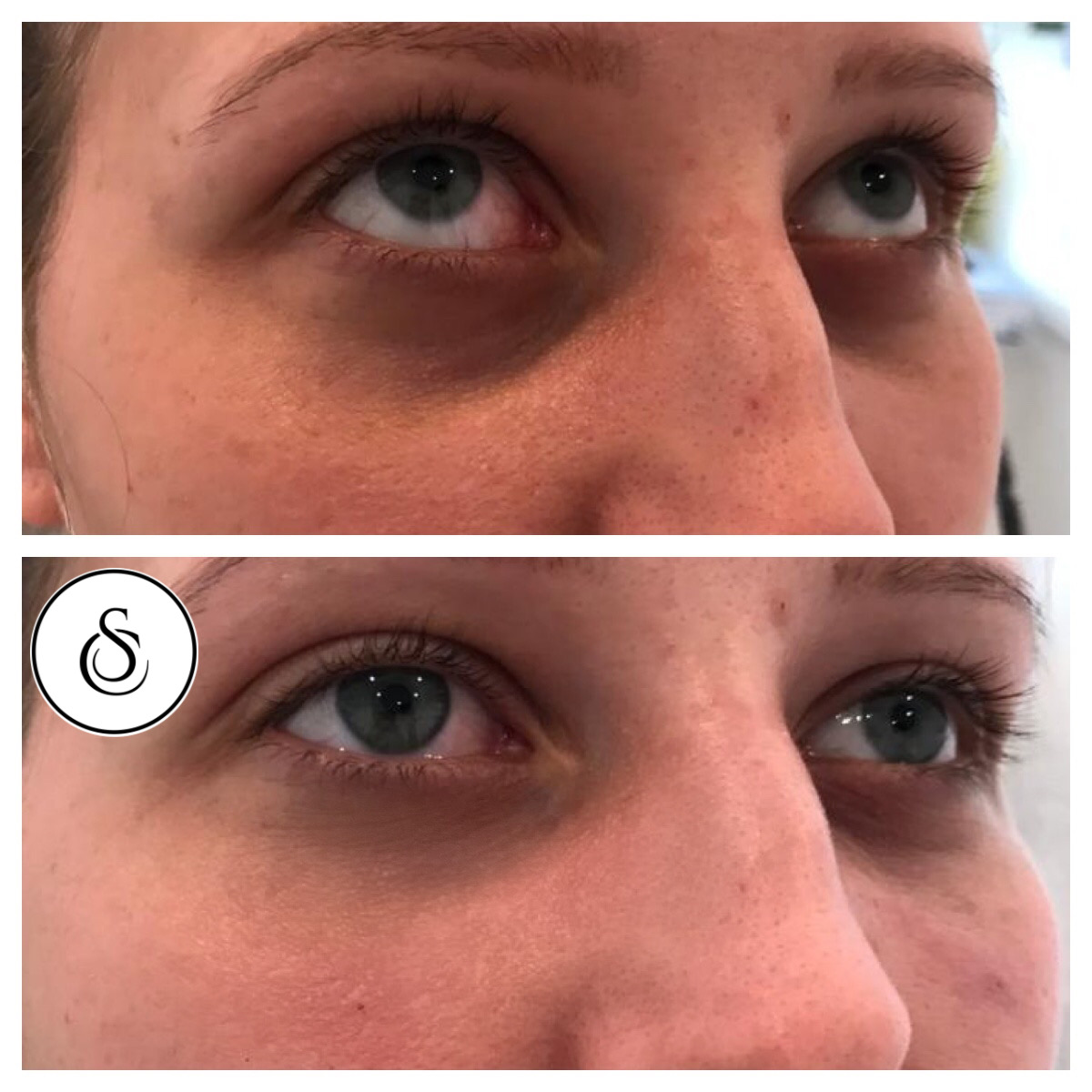 Vrouw behandeling donkere kringen onder ogen traangootfiller bij sarasin clinic