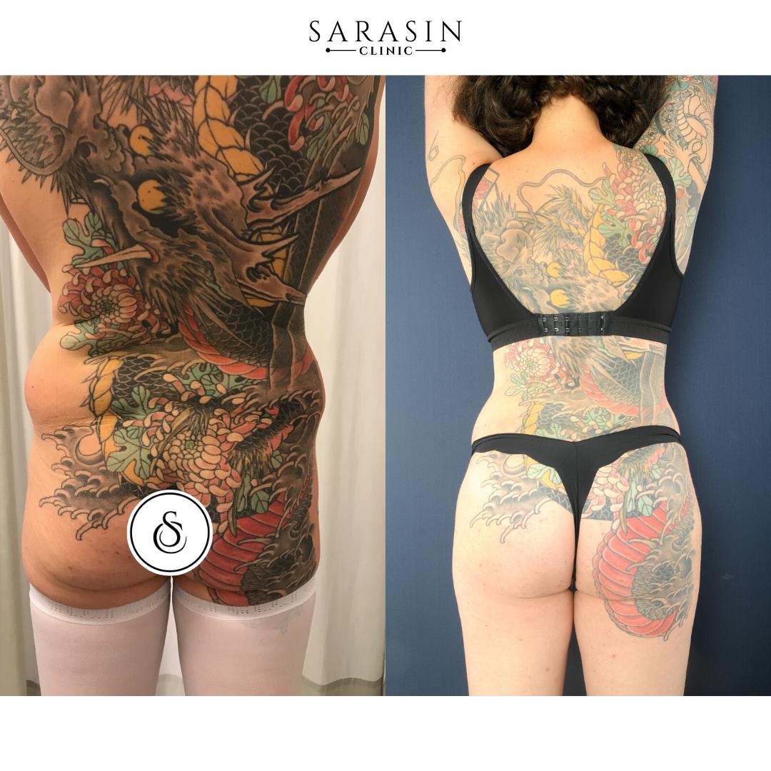 Vrouw met tattoo over lichaam voor en na bilvergroting