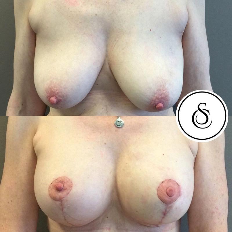 Mastopexie voor en na foto's sarasin clinic