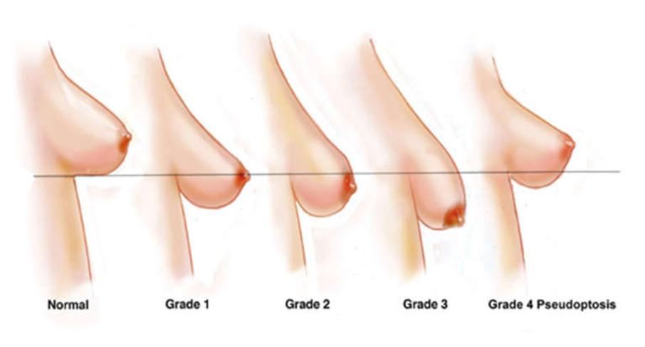 sarasin-clinic-borstlift schematische weergave