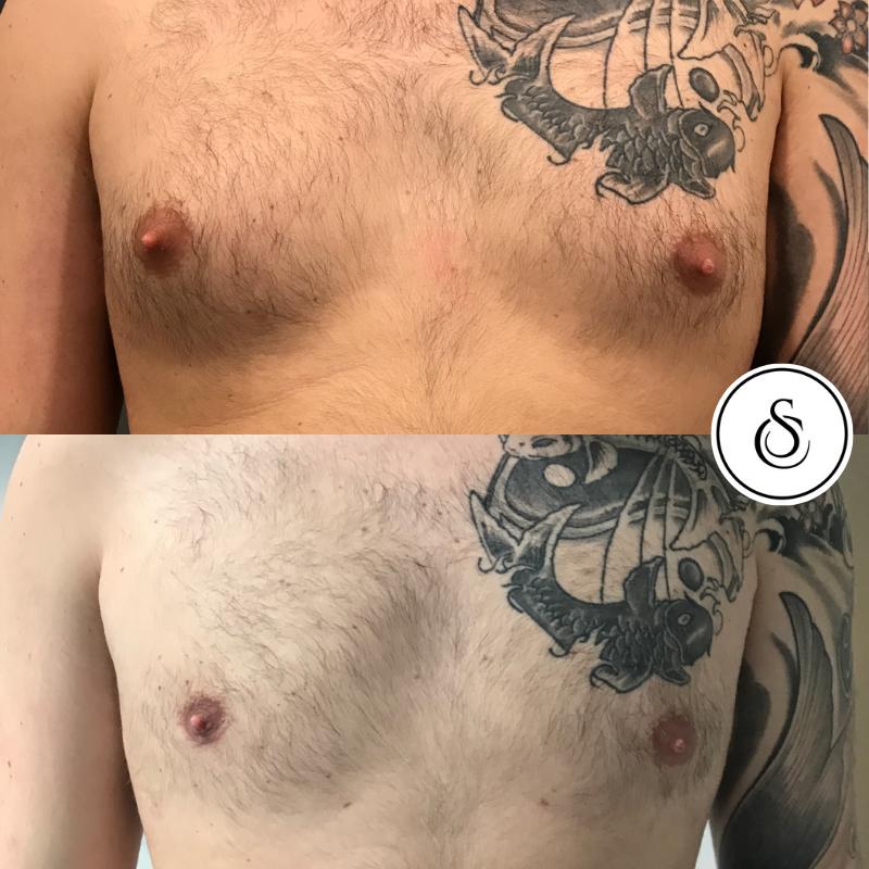 Menboobs operatie bij Sarasin Clinic borst man met tattoo