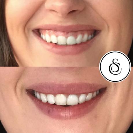 Sarasin Clinic spierontspanners Gummy Smile