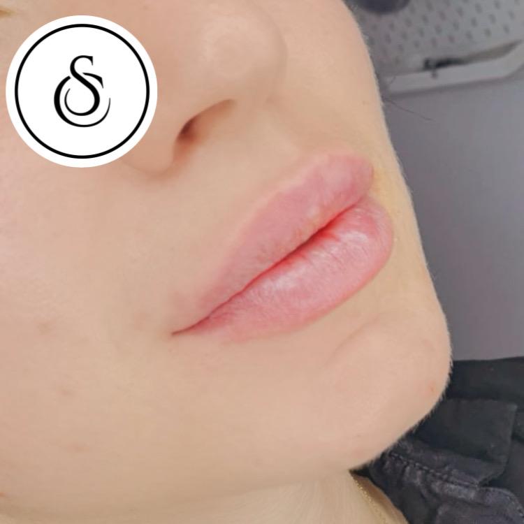 Sarasin Clinic lipfillers