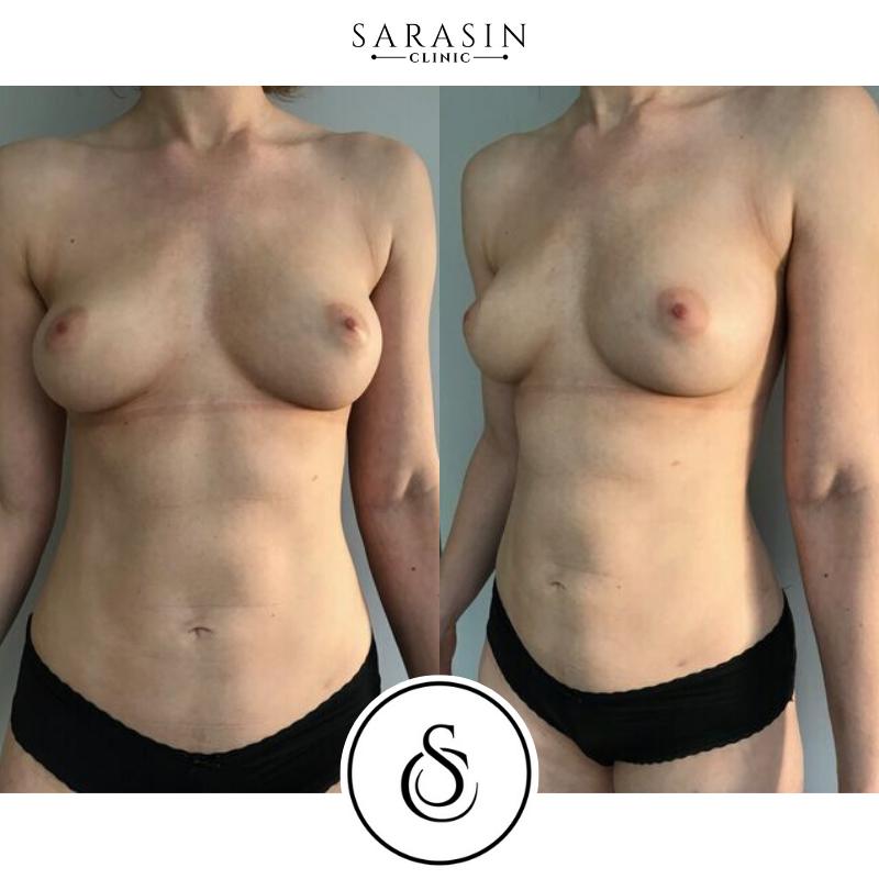 Lipofillingborst resultaatfoto Sarasin Clinic