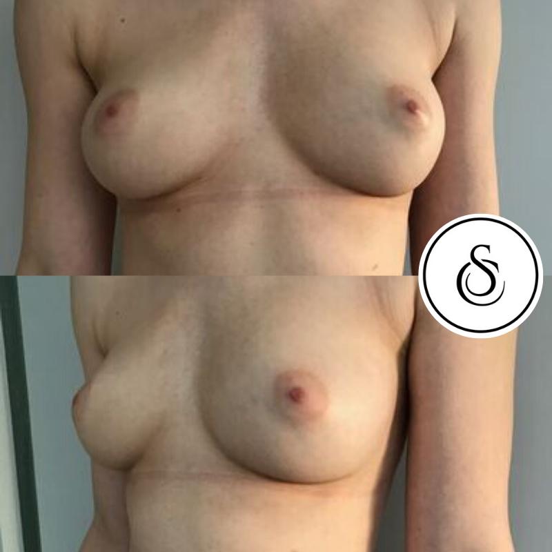 Lipofilling borsten voor en na