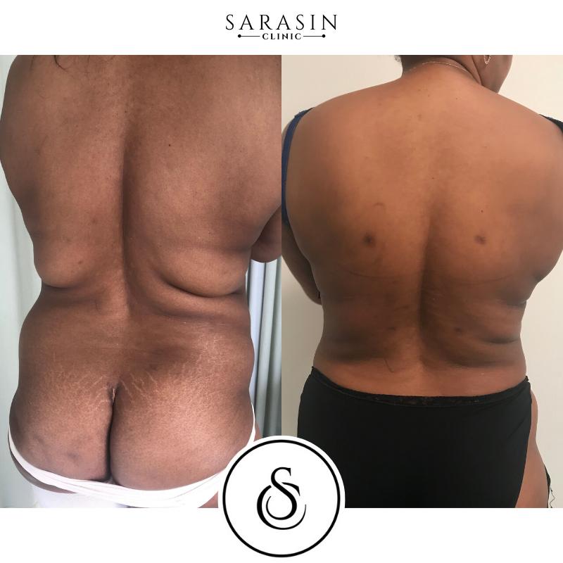 Sarasin Clinic Liposuctie