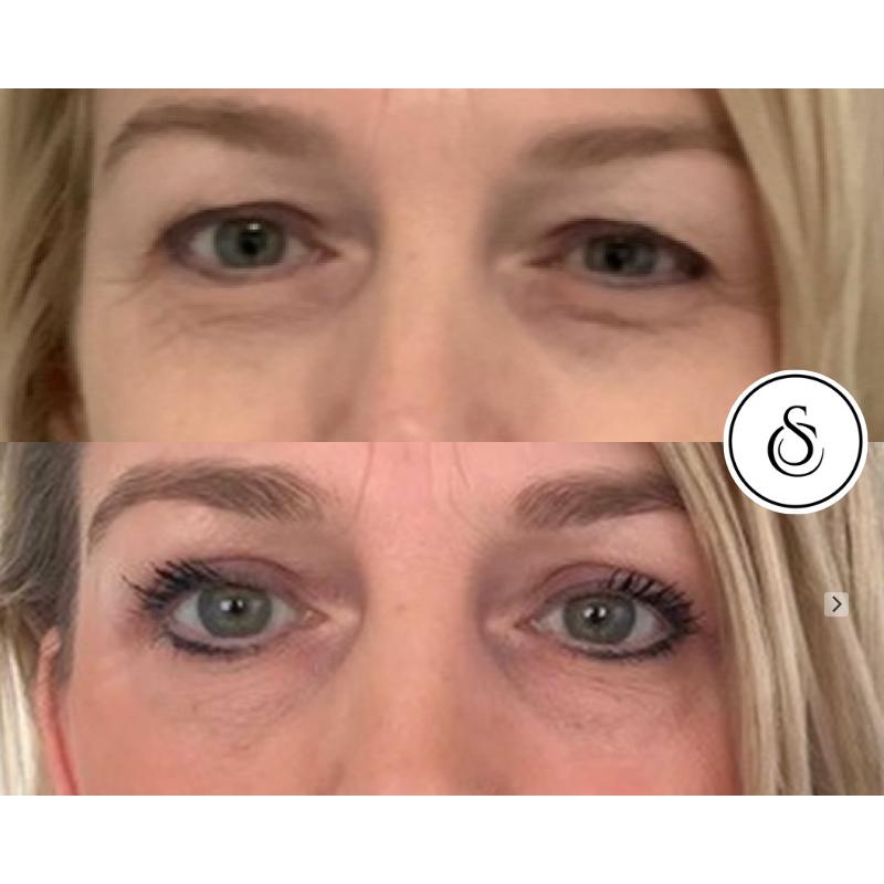 Ooglidcorrectie vrouw resultaten met en zonder make-up