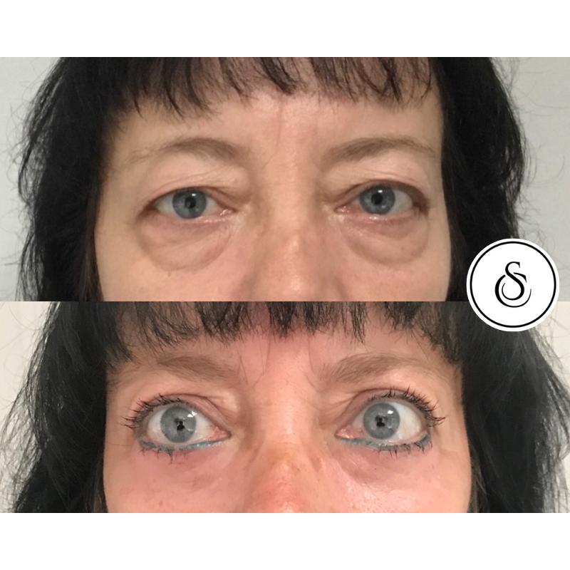 Ooglidcorrectie vrouw voor en na met make-up