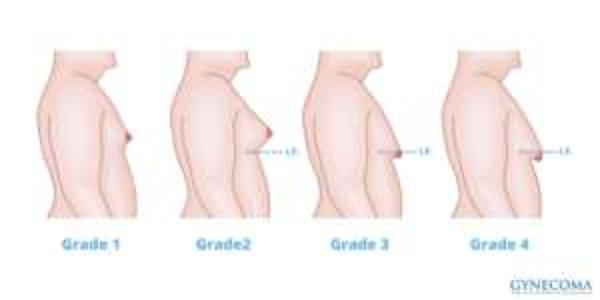 Sarasin Clinic Gynaecomastie
