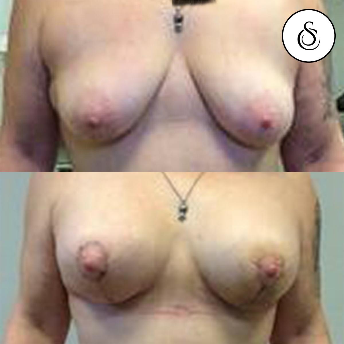 Borstlift en borstvergroting voor en na foto