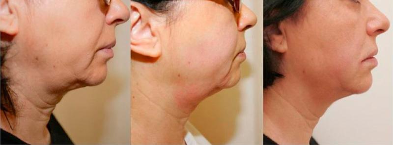 Sarasin Clinic Hifu links voor en rechts na behandeling profiel