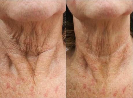 Sarasin Clinic Hifu links voor en rechts na behandeling hals