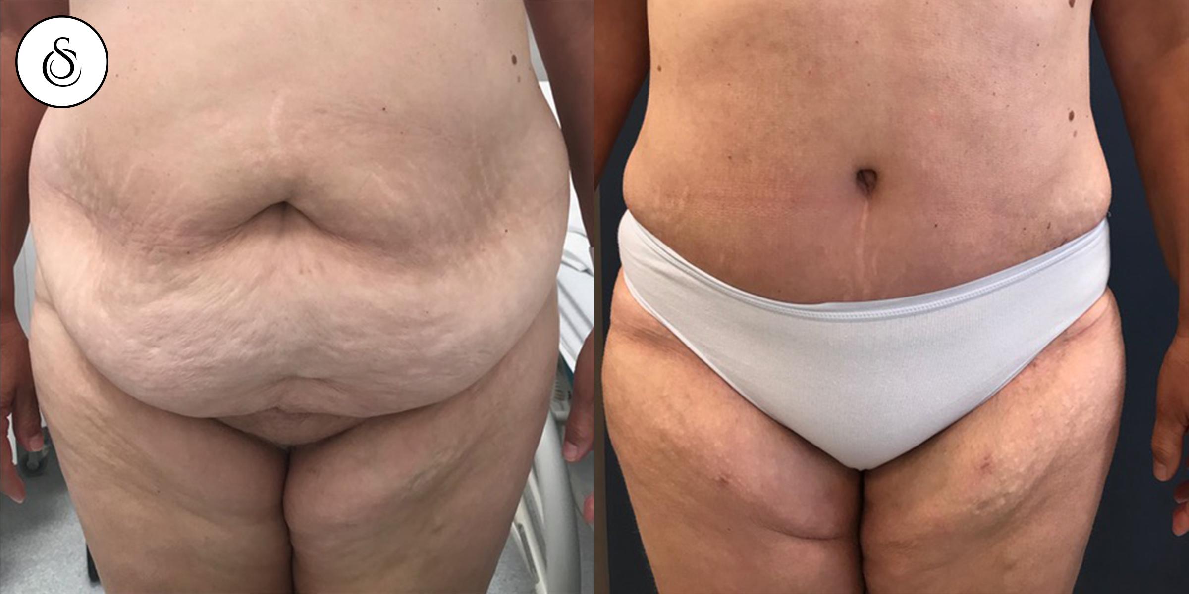 abdominoplastie + lIPOSUCTIE resultaat na operatie