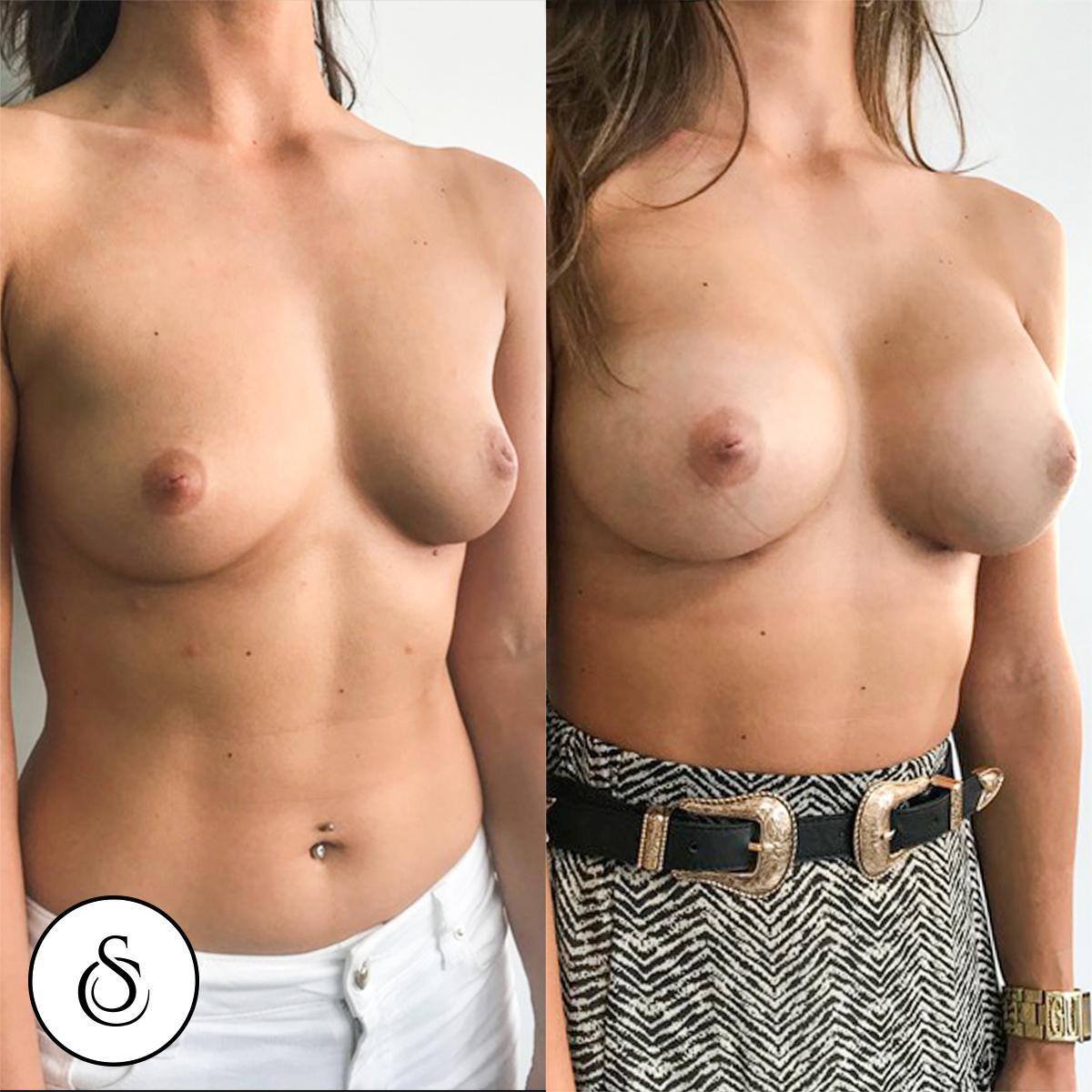borstvergroting voor en na jonge vrouw