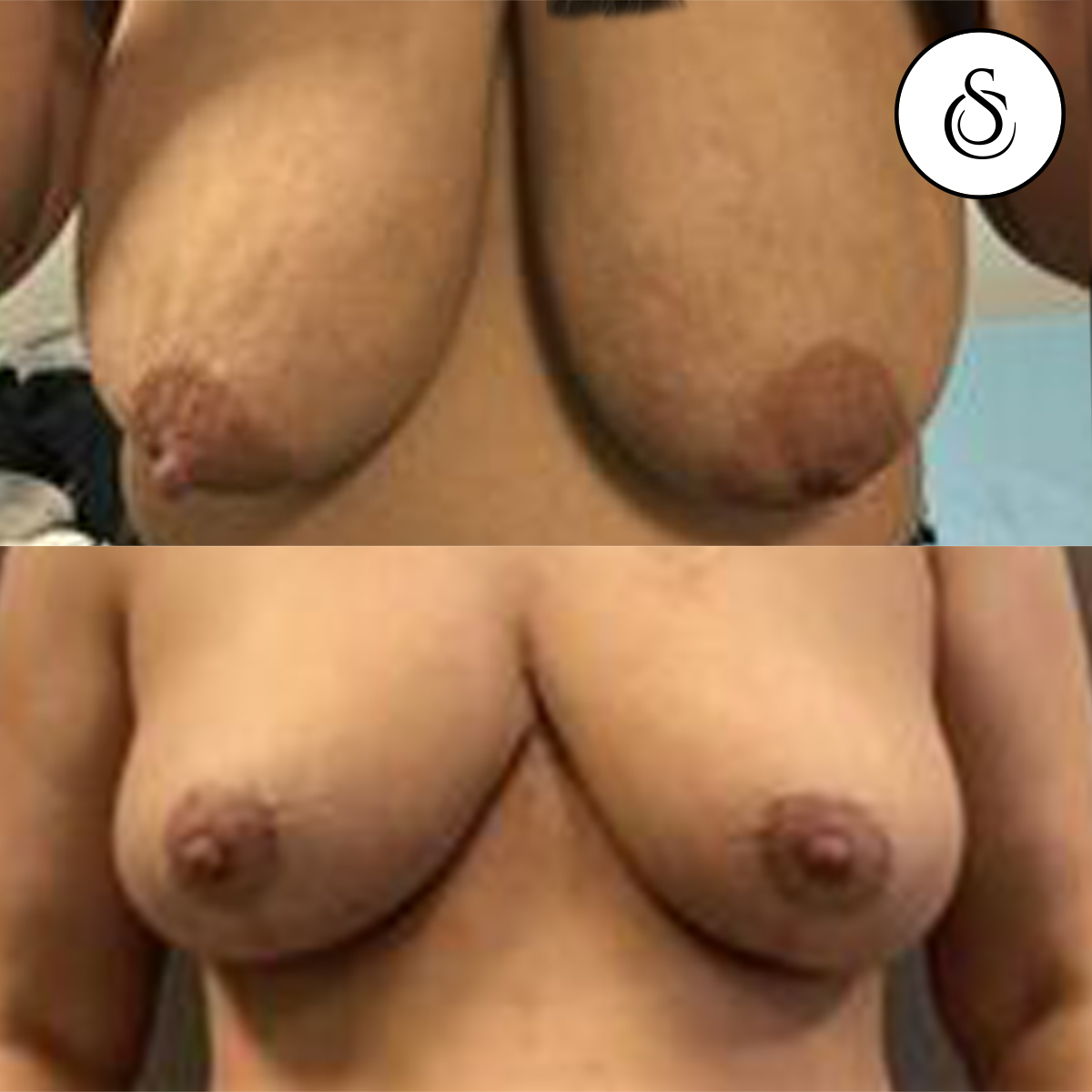 borstverkleining voor en nafoto