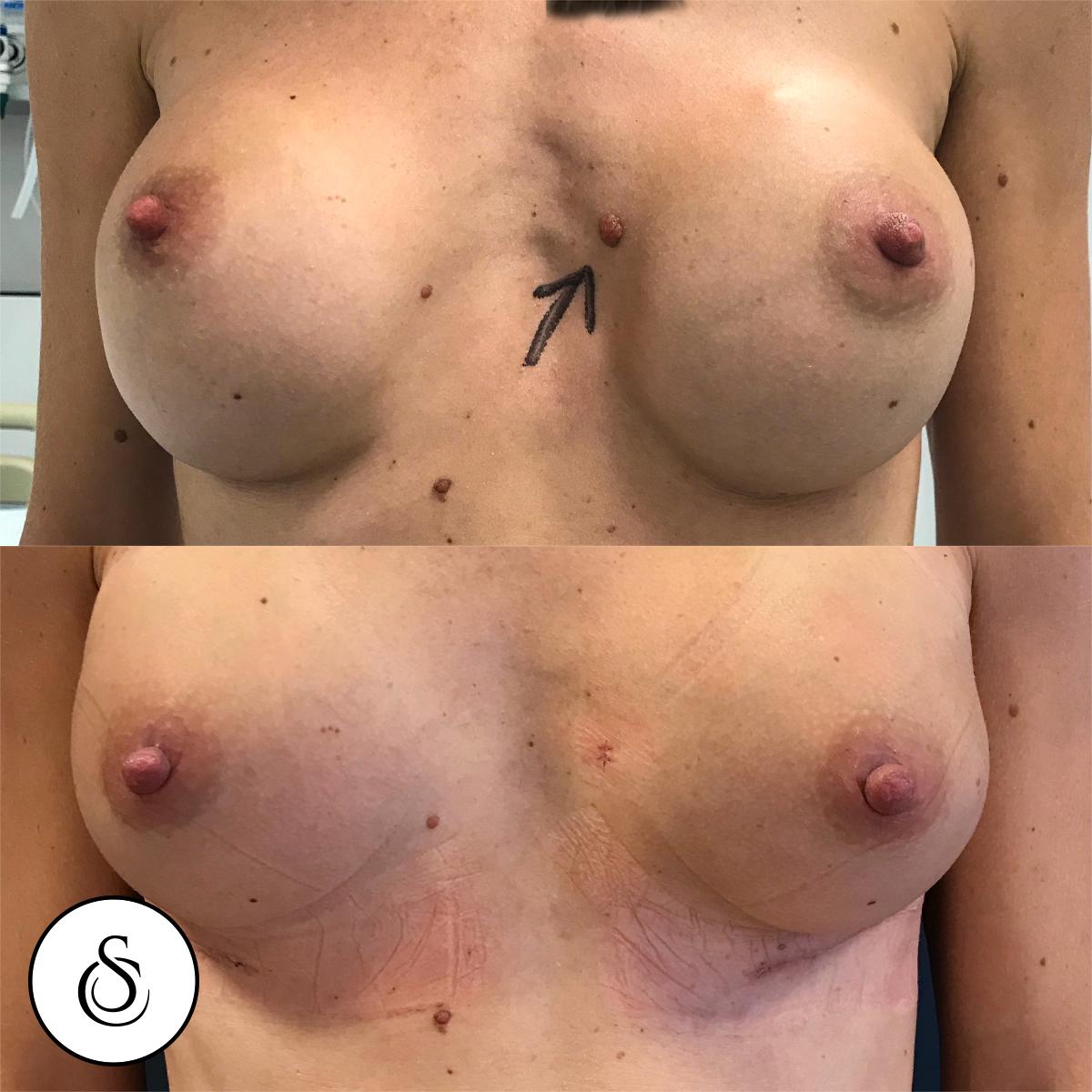 Redo borstaugmentatie inclusief verwijderen moedervlek