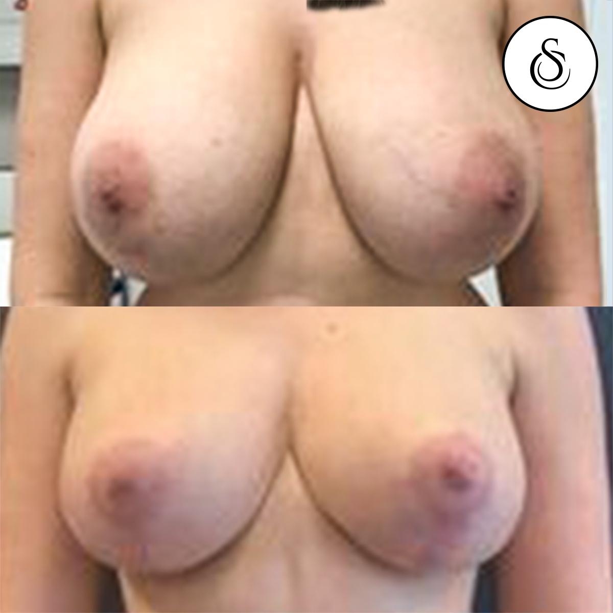 borstverkleining voor en na ongecensureerd