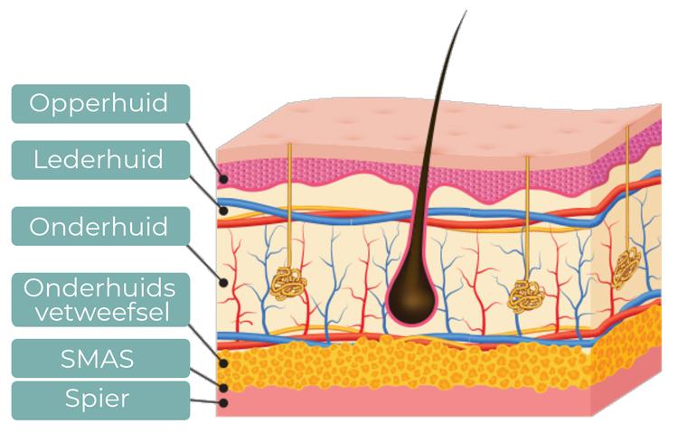 Huidlagen HIFU - schematische weergave huidlagen