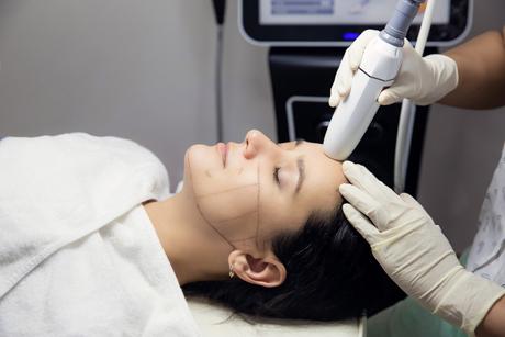 Hifu behandeling bij Sarasin Clinic
