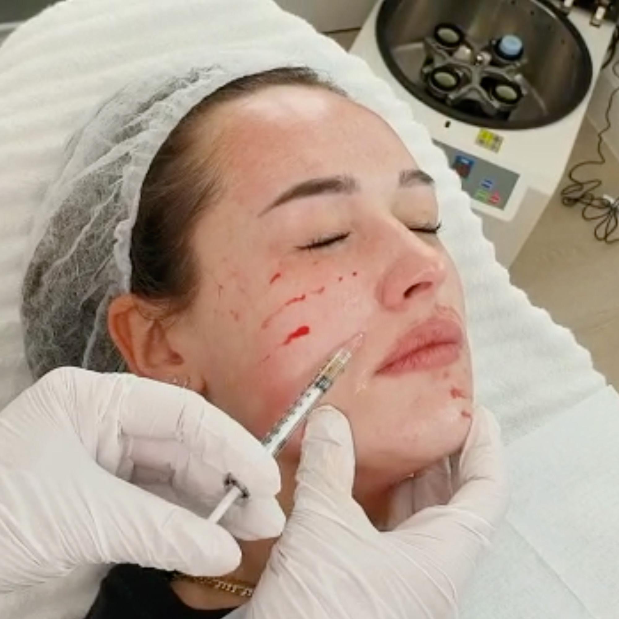 Sarasin Clinic PRP Vampire Facial