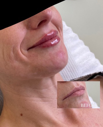 Fresh natural lips filler bij vrouw before and after