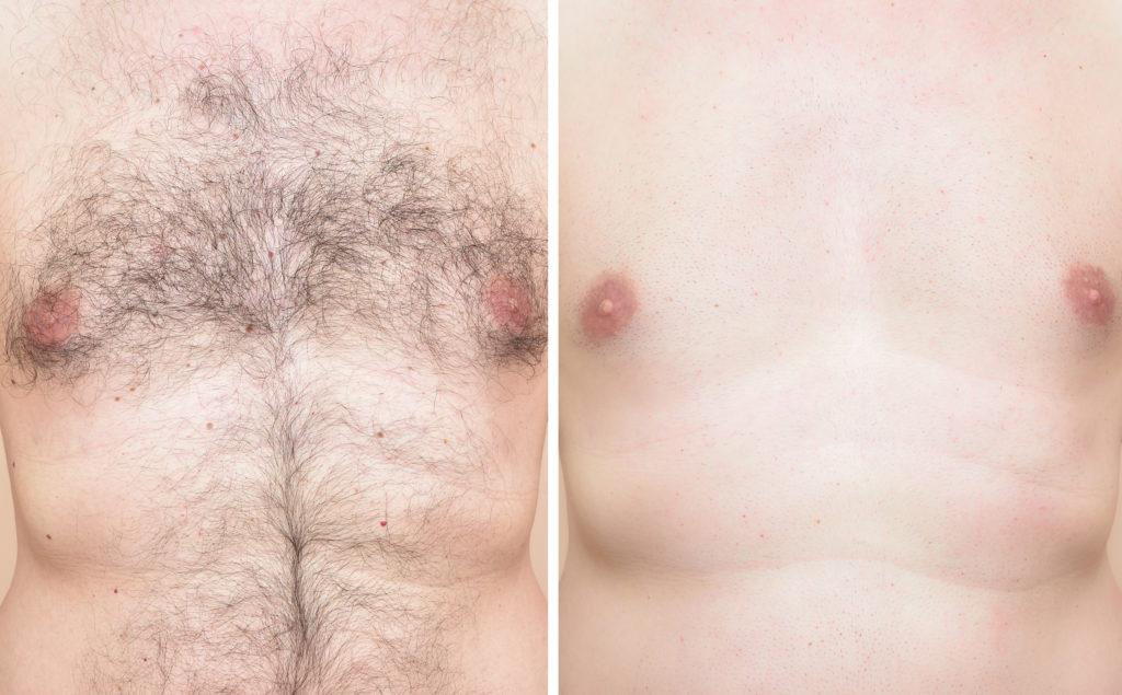 Sarasin Clinic laserontharing man borst