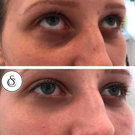 traangootfiller voor en na foto sarasin clinic