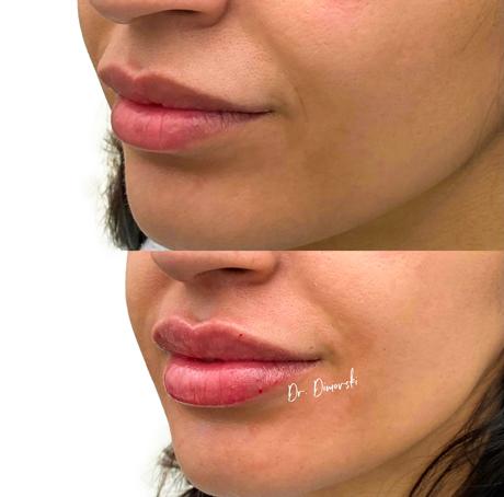 Sarasin Clinic lipfiller voor en na resultaatfoto