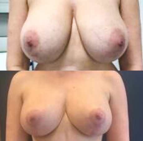 Borstverkleining voor en na foto