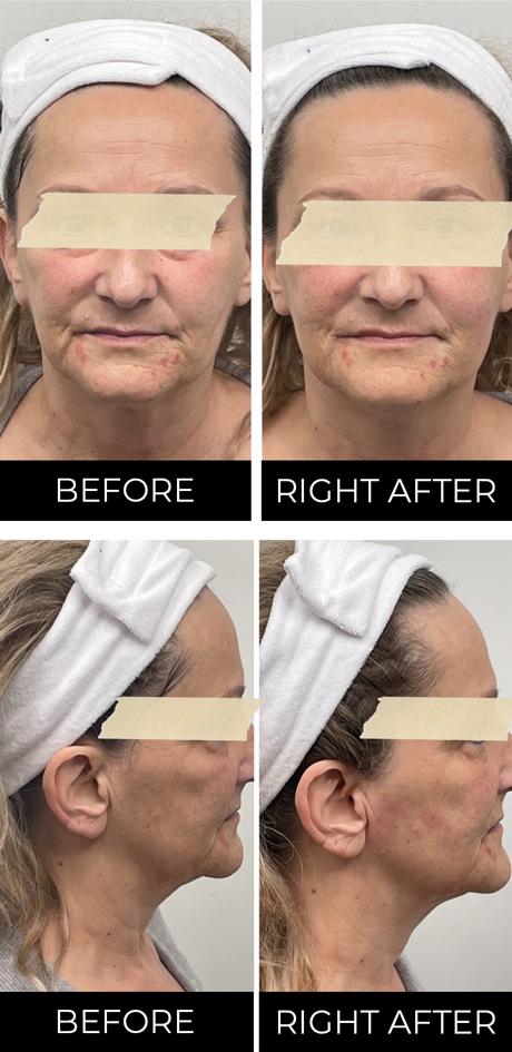 HIFU direct na eerste behandeling voor- en zijaanzicht