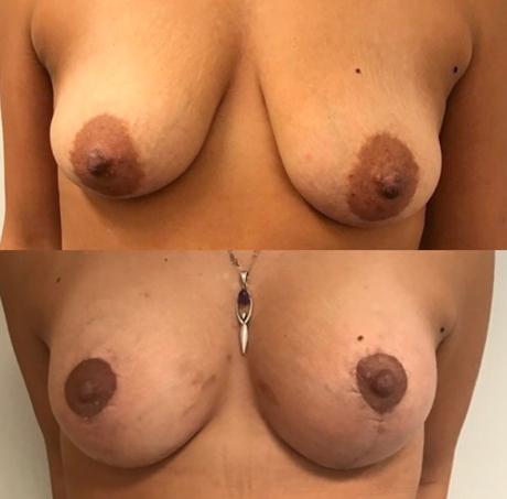 lift + prothese bij borsten voor en na foto