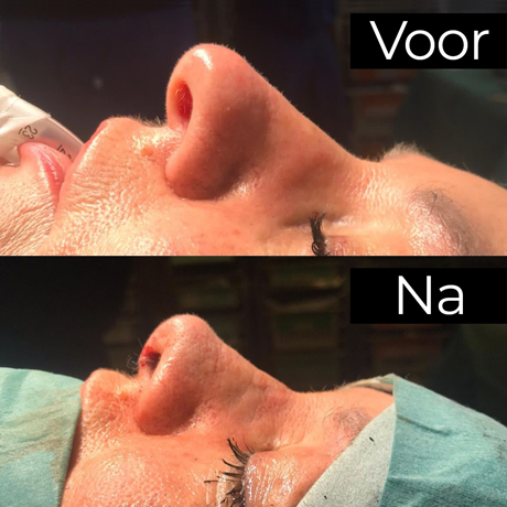 neuscorrectie voor en na foto's