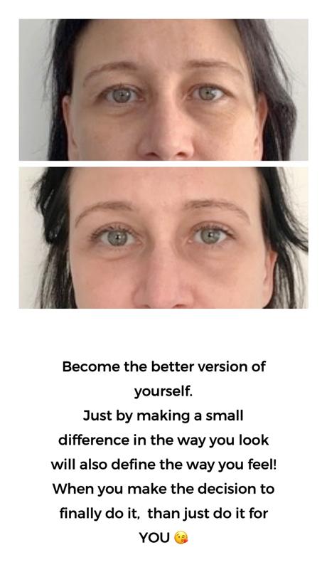 ooglidcorrectie voor en na de operatie