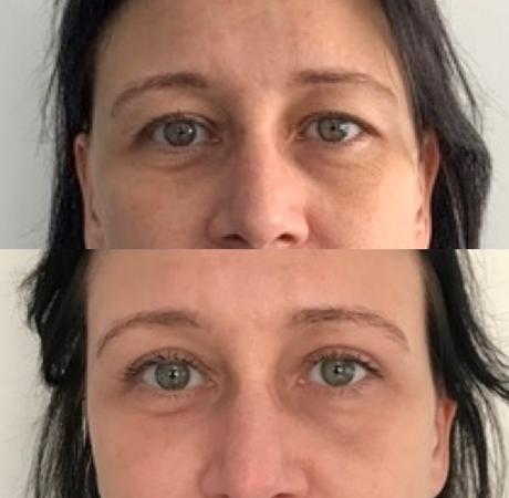Ooglidcorrectie bij vrouw - voor en na operatie