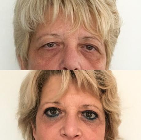 Ooglidcorrectie vrouw voor en na foto met make-up