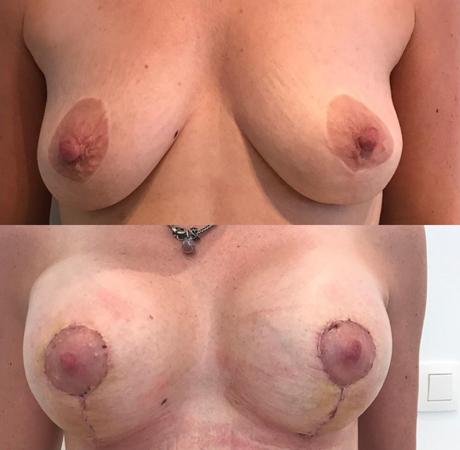 borstlift + prothese voor en na