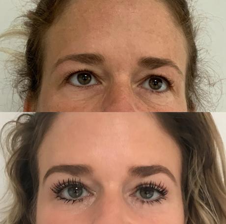 Sarasin Clinic oogcorrectie