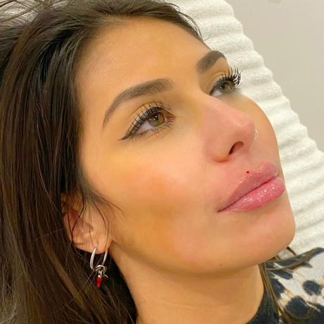 Sarasin Clinic Lipfiller