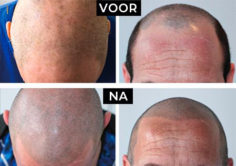 Microlhaarpigmentatie man voor en na