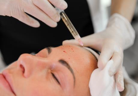 Sarasin Clinic PRP huidverbetering