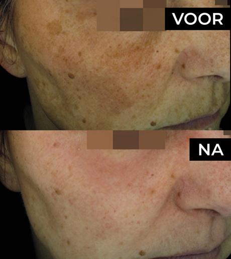 Medische Peeling pigmentatie huid voor en na