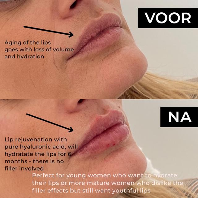 Sarasin Clinic Lipfiller Profhilo