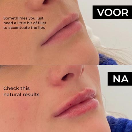 Natural lipfiller bij vrouw voor en na foto's