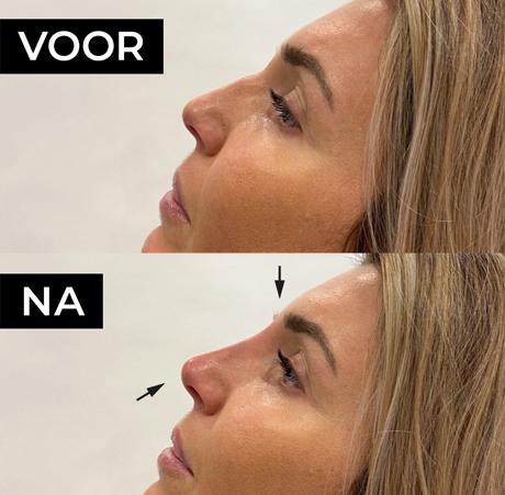 Neusfiller bij vrouw voor en na foto's zijaanzicht
