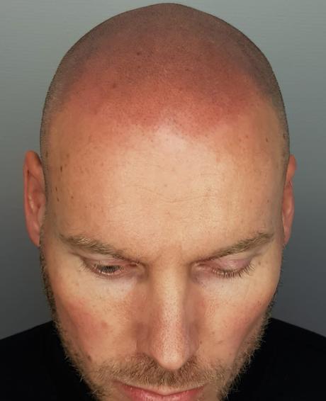 microhaarpigmentatie na behandeling bij Sarasin Clinic - rood hoofd