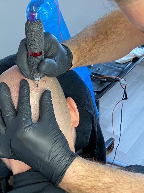 microhaarpigmentatie bij man tijdens behandeling