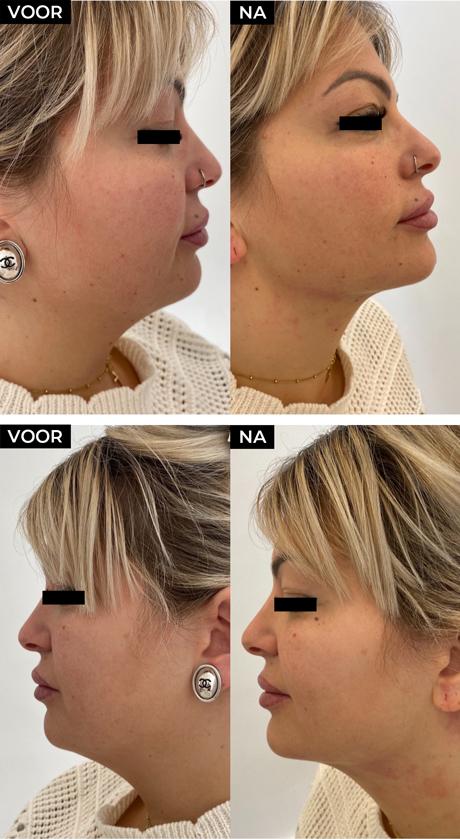 Voor en na foto's jonge vrouw na HIFU behandeling