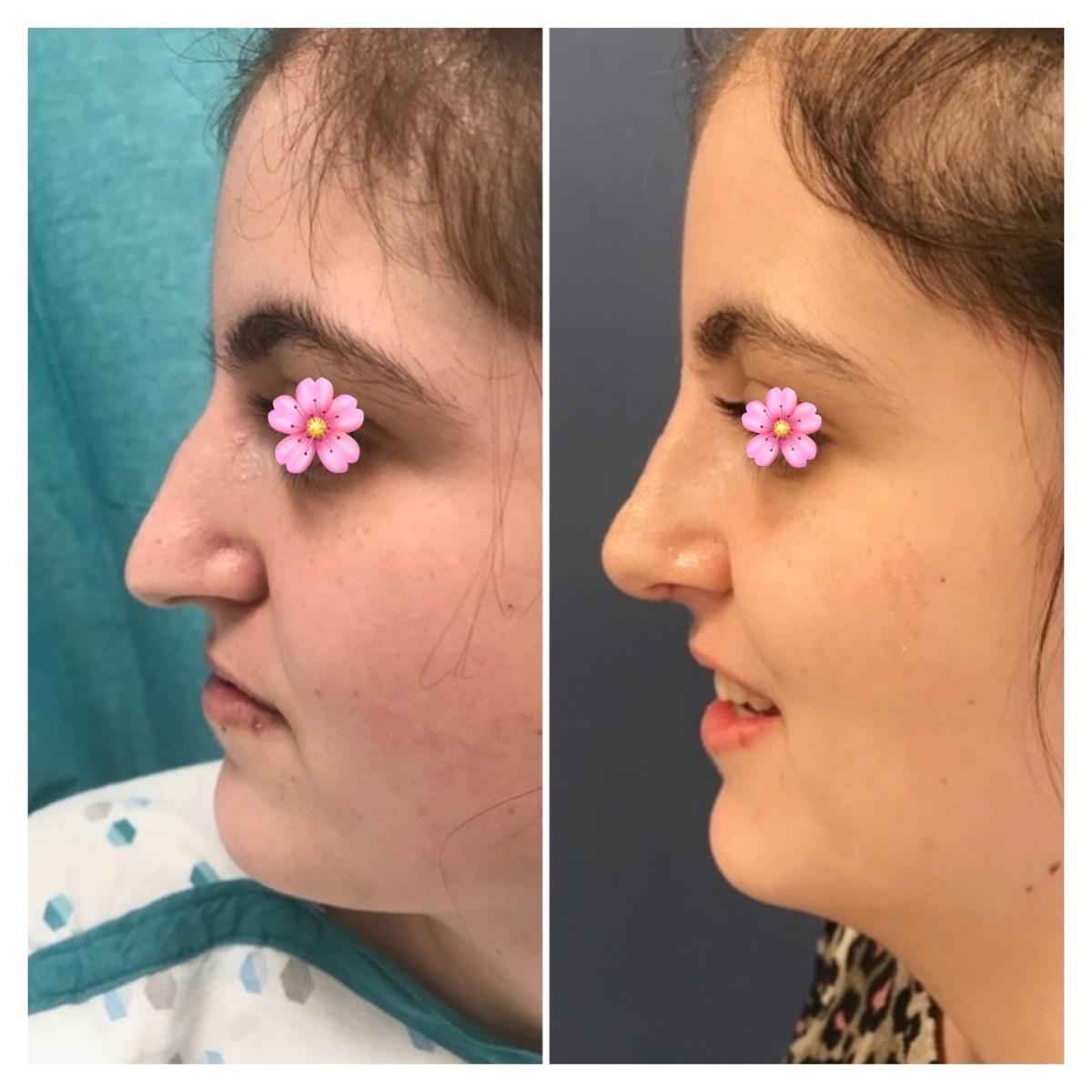 Voor en na foto van jonge vrouw - zijaanzicht neuscorrectie