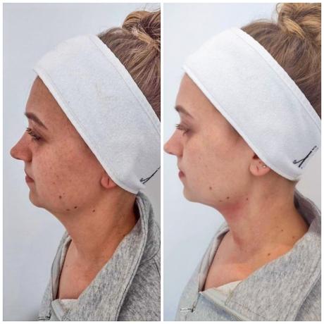 Jonge vrouw hangende wangen hifu behandeling voor en na